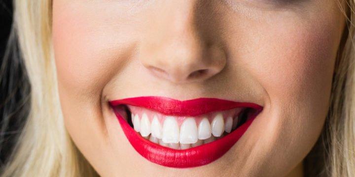 Hvite tenner med tannbleking på nett